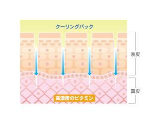 ニードリング_文字あり2.jpg