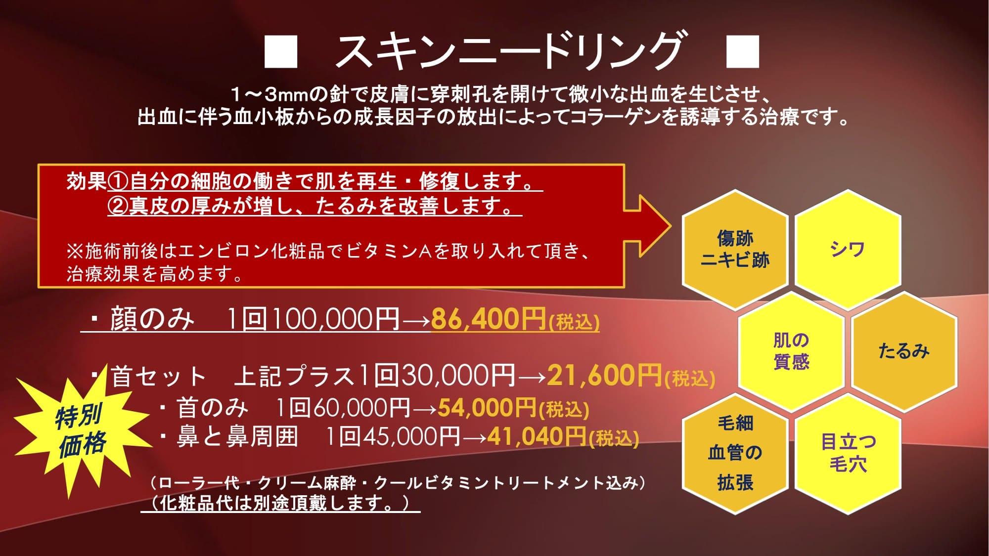 http://hifuka-eigo.com/kyoto/beauty/blog/%E3%83%8B%E3%83%BC%E3%83%89%E3%83%AA%E3%83%B3%E3%82%B0%E3%80%80%E3%83%81%E3%83%A9%E3%82%B7%E2%98%85.jpg