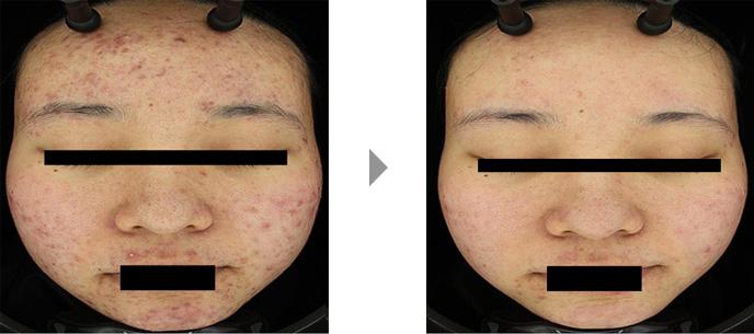 科 エンビロン 皮膚